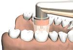 ازن درمانی برای پوسیدگی دندان